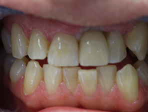 dental implants, Dental Implants